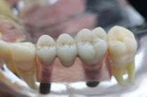Zahnarztpraxis, Kaubrügge, Homburg, Implantate